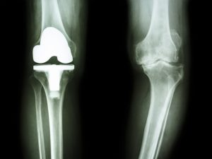 partial joint replacement