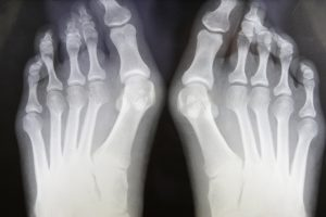 X-ray Of Feet With Bunions