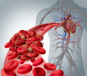 Blood clot risk medical illustration