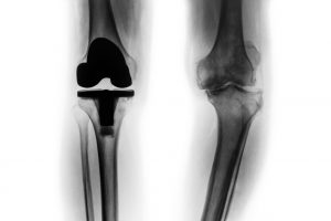 Film x-ray knee and Total knee replacement